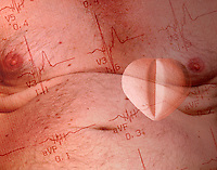 Torso of overweight man with electro cardiogram readout and beta blocker heart pill