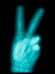 X-ray of a hand showing the gesture for the word peace