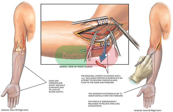 This surgical exhibit reveals illustrations showing decreased Circulation to the Right Arm and Hand followed by operative views of a brachial Artery Repair and Fasciotomy procedure.