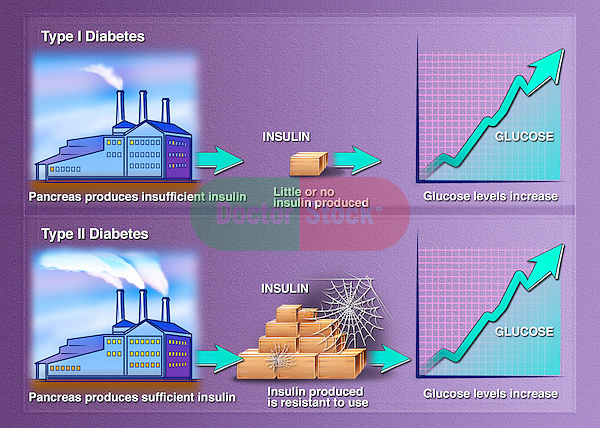 This stock illustration compares and contrasts diabeted type 1 with diabetes type 2, Insulin dependent, type 1 is shown first and is demonstrated by a factory (pancreas) that is putting out insufficient product (insulin). Type 2 is shown using a factory (pancreas) that puts out sufficient product (insulin) that simply is not utilized.