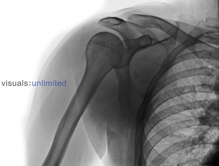 Normal x-ray of the shoulder of a 30 year old man