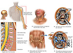 Spinal Fusion Surgery - Cervical Spine Injuries with Surgical Fusion