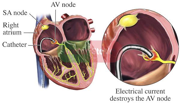 Electrical Destruction Of The Av Node Doctor Stock