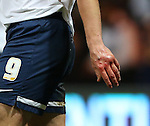 Preston's Kevin Davies hurts his hand<br /> <br /> FA Cup - Preston North End vs Manchester United  - Deepdale - England - 16th February 2015 - Picture David Klein/Sportimage