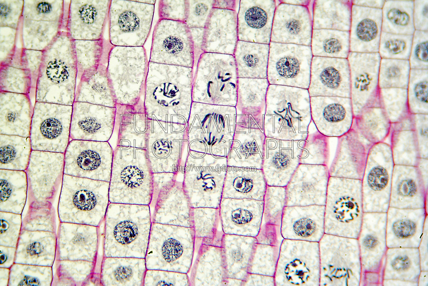 CELL MITOSIS- ONION ROOT TIP<br /> Various Stages 1000x<br /> Visible in the center is a cell in late anaphase of mitosis with the chromosomes already separated and beginning to reform within nuclei. Other stages shown are interphase, prophase, metaphase and newly divided cells following telophase.