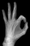 X-ray image of OK hand gesture (white on black) by Jim Wehtje, specialist in x-ray art and design images.