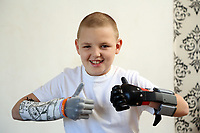 Pictured: Alan Gifford gives the thumbs up. Friday 18 August 2017<br /> Re: 11 year old Alan Gifford who has two prosthetic arms, Loughor near Swansea, Wales, UK.