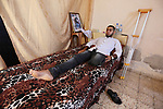 Palestinian disabled Mohammed Al Akhras, 32, who lost his leg by Israeli troops during clashes at Gaza-Israel border lies on his bed at his home in Rafah in the southern Gaza Strip on June 14, 2018. Since 30 March Israeli army had shot dead 128 Palestinians and around 14,000 injured; around half of them were shot by live ammunition, many still in critical condition. Photo by Ashraf Amra