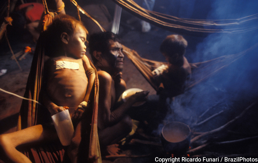Gold mining inside Yanomami Indigenous People territory causing diseases and acculturation, sick under-feeded Yanomami child with malaria. Surucucus Brazilian Army Post, Roraima State, Amazon rain forest, Brazil.