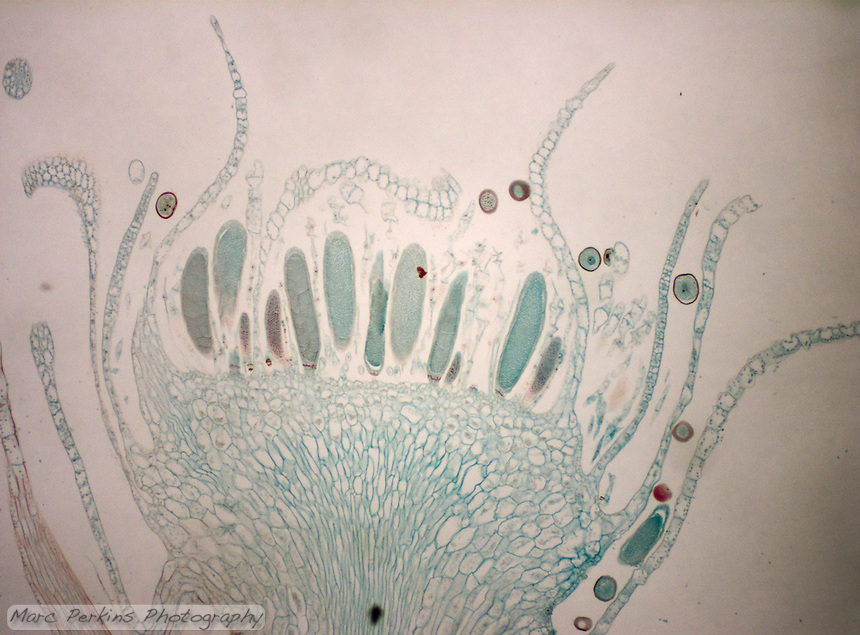 Cross section through many antheridia of a moss, all of which contain sperm.  These antheridia are surrounded by paraphyses.