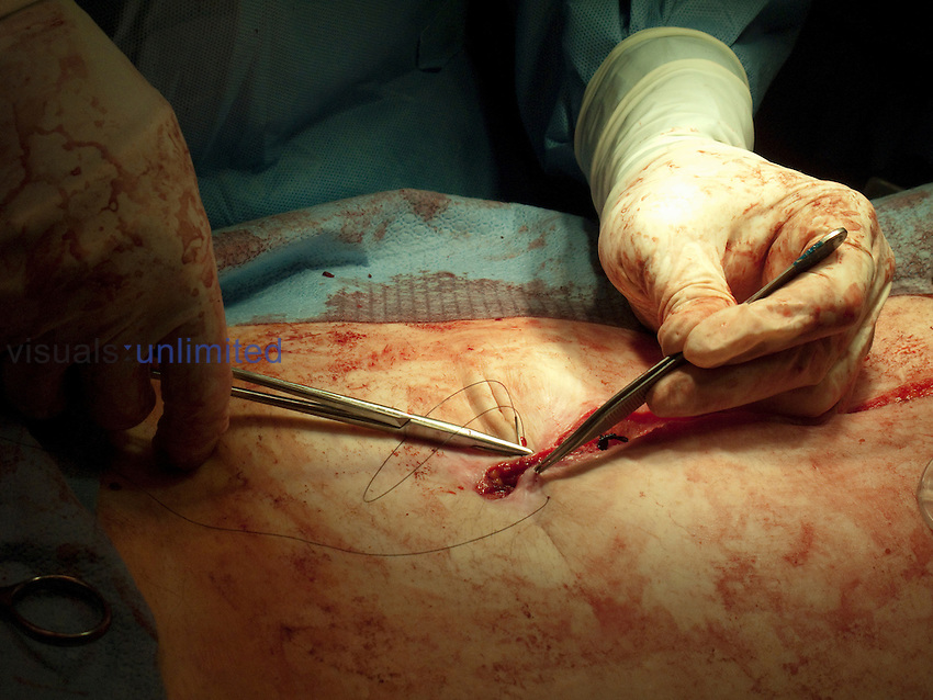 Surgeon closing a skin incision