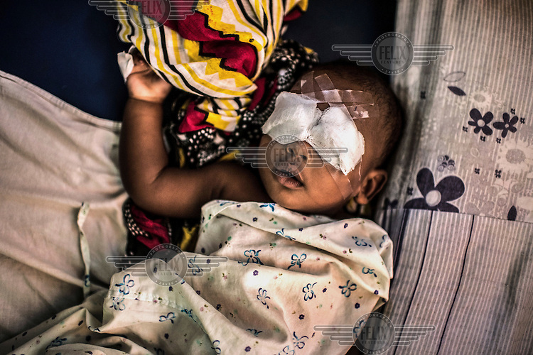 Seven month old Yassir Khamis Amour, from Pemba Island, recovers after bilateral cataract surgery at the Mnazi Mmoja hospital.