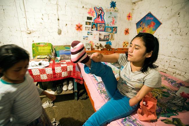 17歳の誕生日会のため身支度をするクリストバリーナ。生きる意欲を失っていた事故直後から約2年、バースデーケーキのロウソクには翌年もこうして誕生日を迎えられるようにと願った。この日から1週間後には再度、両脚の火傷の皮膚移植手術のための入院を控えていた。