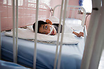 A physically and mentally disabled child lies in a bed.