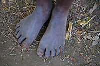 Africa, Madagascar, Ambalavao. Anja Community reserve. Feet of local person.