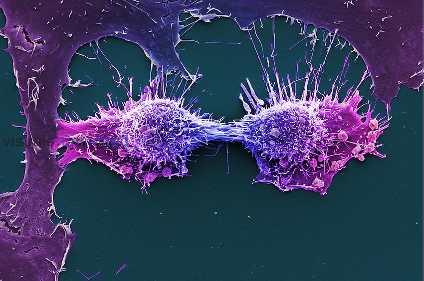 HeLa cells dividing. SEM
