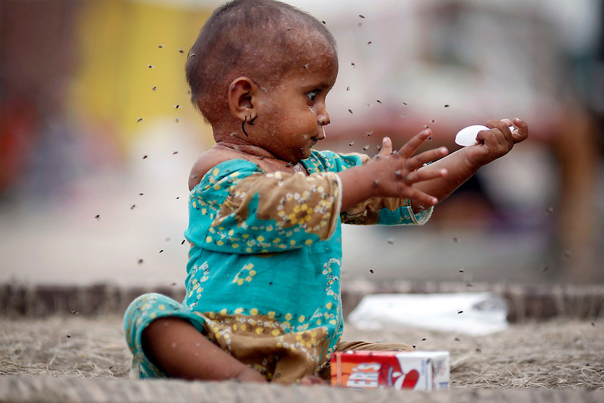 Flies fly around a sick girl who is a flood victim,at the ...