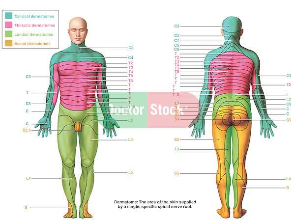 This medical exhibit accurately depicts the cervical, thoracic, lumbar and sacral dermatomes from anterior and posterior views of the human body. The graphics picture color-coded areas and clearly demarcated labels listing each dermatome. In addition, a definition for a dermatome appears at the bottom reading: The area of the skin supplied by a single, specific spinal nerve root.