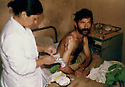 Iran 1982 .A patient receiving treatment in the hospital of Ghalve .Iran 1982 .Soins a l'hopital de Ghalve