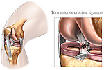 This medical exhibit series pictures an orientation view of the right knee with an enlargement depicting an anterior cruciate ligament (ACL) tear injury.