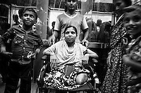 Bangladeshi garment worker Pakhi, 30, who worked on the 5th floor of Rana Plaza, at Enam Medical College, in Savar, near Dhaka, Bangladesh. Pakhi had both her legs amputated to free her from the rubble when she was rescued nearly 72 hours after the building collapsed.