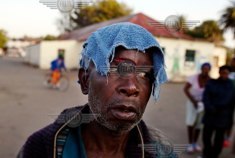 This elderly man was lucky to survive an attack which left two men dead, after being attacked by a mob at the Joe Slovo Hostel in Reiger Park. The men attacked were Mozambique nationals who worked on a local mine. Thousands of migrants have been forced to flee due to brutal xenophobic attacks on foreign African migrants living in South Africa's impoverished townships.