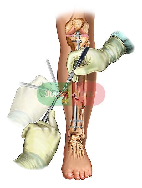 Leg Wound Debridement; this medical illustration illustrates leg wound debridement in a tibial fixation procedure.