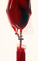 Bag of blood, transfusion.