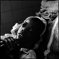 Huambo, Angola, May, 24, 2006.Magolino Makina, 16, suffers from accute TB as well as severe thyroid gland swelling caused by lack of iodine. More than 300 TB patients live in Huambo State Sanatorium, hundreds more are outside patients. TB is endemic in the region, fueled by poverty, malnutrition, inadequate hygiene and the rapid spreading of HIV/AIDS since the end of the civil war in 2002.
