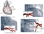 Coronary Arteries - Angiogram Film.