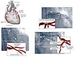 Coronary Arteries - Angiogram Film.