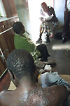 NOT MODEL RELEASED; FOR EDITORIAL USE ONLY... scarred back of African man suffering with HIV Aids sitting in hospice room with other HIV Aids suferers at Mashambanzou Care Trust run by nuns, in Harare, Zimbabwe