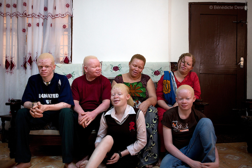 10 june 2010 - Dar Es Salaam, Tanzania - Samuel Herman Mluge (51yrs) an albino rights activist in Dar Es Salaam, Tanzania and his wife Teresa January (46 yrs) have five children, all with albinism. Albinism is a recessive gene but when two carriers of the gene have a child it has a one in four chance of getting albinism. Tanzania is believed to have Africa' s largest population of albinos, a genetic condition caused by a lack of melanin in the skin, eyes and hair and has an incidence seven times higher than elsewhere in the world. Over the last three years people with albinism have been threatened by an alarming increase in the criminal trade of Albino body parts.At least 53 albinos have been killed since 2007, some as young as six months old.Many more have been attacked with machetes and their limbs stolen while they are still alive. Witch doctors tell their clients that the body parts will bring them luck in love, life and business. The belief that albino body parts have magical powers has driven thousands of Africa's albinos into hiding, fearful of losing their lives and limbs to unscrupulous dealers who can make up to US$75,000 selling a complete dismembered set. The killings have now spread to neighbouring countries, like Kenya, Uganda and Burundi and an international market for albino body parts has been rumoured to reach as far as West Africa. Photo credit: Benedicte Desrus