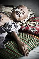 BURMESE REFUGEES IN THAILAND: THE MAE TAO CLINIC (2010)