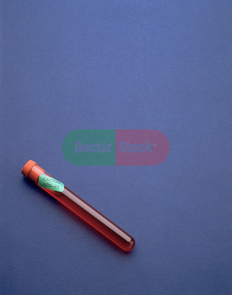 Vial with blood sample marked as containing the AIDs virus