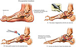 Ankle Bone Arthrits with Subtalar Joint Fusion Surgery. This medical exhibit depicts the arthritic condition of the talonavicular and subtalar joint. It features the surgical steps involved in debriding the diseased bone and surgical fixation with bone grafts and hardware.
