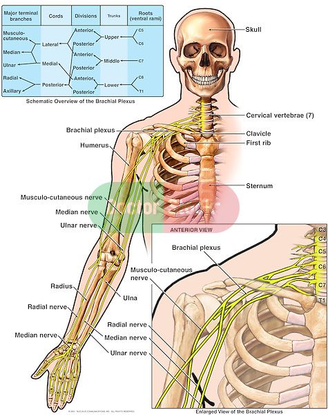 This medical exhibit diagram pictures the anatomy of the brachial plexus region from an anterior (front) view. A schematic overview lists the roots (ventral rami) of C5, C6, C7, C8 and T1, trunks (upper, middle and lower), divisions, cords (lateral, medial and posterior) and major terminal branches including the musculocutaneous, median, ulnar, radial and axillary nerves.