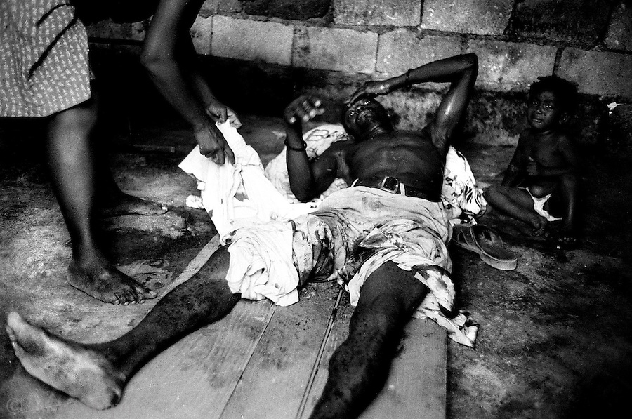 a victim of a haitian police raid in the bel air slum - the injured are hidden in homes because they are too afraid that going to the hospital would mean certain arrest.<br />
