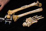 Homo floresiensis foot bones, tibia and femur. Extrapolating the length of the missing hobbit calcanus (heel bone) suggests that hobbits sported short, stout legs and huge feet.