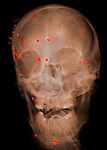 X-ray showing a shotgun wound to the head of a 53 year old man who died of brain injuries.
