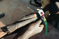 Angola. Cuando Cubango. Mavinga. Therapeutic and suplementary feeding center run by MSF (M?decins Sans Frontires) Switzerland. Every morning, children are weighed and their height measured to determine their degree of malnutrition. Arm of a young boy severely malnourished. Muac test for malnutrition's exam. © 2002 Didier Ruef