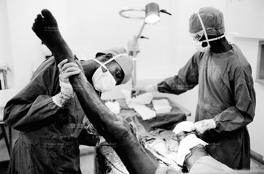 Angola. Province of Bié. Kuito. Hospital. Surgery room. Amputation of right leg of a man who, while working in the fields, walked on a landmine and got his leg blown by the blast. Lower limb. © 2000 Didier Ruef
