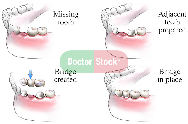This medical exhibit illustrates the steps involved in installing a dental bridge to fill in for a missing tooth.