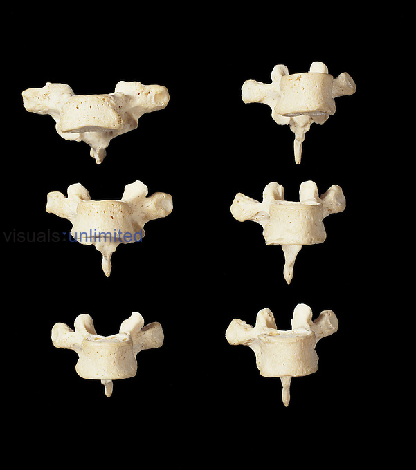 The first six human thoracic vertebrae from the front (T1-T6). The twelve vertebrae in the middle of the spine are called thoracic vertebrae. The spine supports the head, holds the body upright and protectively encircles the spinal cord which passes through its central cavity. The spine consists of 33 vertebrae, articulated by intervertebral discs which allow flexibility and movement.