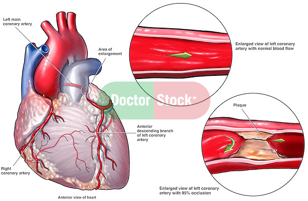 Coronary Artery Disease Leading to Fatal Heart Attack | Doctor Stock