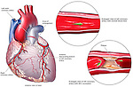 "Depicts progressive coronary artery disease of the heart, showing normal blood flow throught the left main coronary artery contrasted with a blocked version with 95% occlusion. The left anterior descending (LAD) branch of the left coronary artery is called the ""Artery of Sudden Death"" because it supplies the left ventricle heart muscle. When the LAD is suddenly occluded, a fatal myocardial infarction, or heart attack, usually occurs."