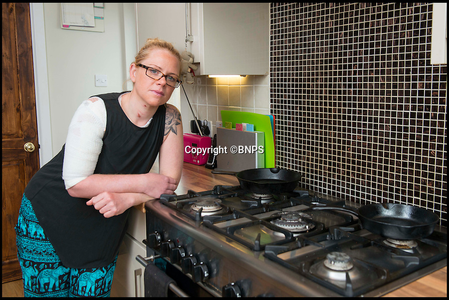 BNPS.co.uk (01202 558833)<br /> Pic: TomWren/BNPS<br /> <br /> Amanda Clarke back in her kitchen where the inceident happened.<br /> <br /> A mum-of-three is lucky to be alive after her top turned into a fireball while she was cooking dinner for her family.<br /> <br /> Amanda Clarke was left with third degree burns that need a skin graft when her polyester top caught on the gas hob and engulfed her in flames.<br /> <br /> The 34-year-old was forced to rip the top like wrestler Hulk Hogan to get it off over her head, burning her eyeballs and singeing her hair in the process.<br /> <br /> She is now recovering in hospital but will be left with permanent scars to her right arm and chest.