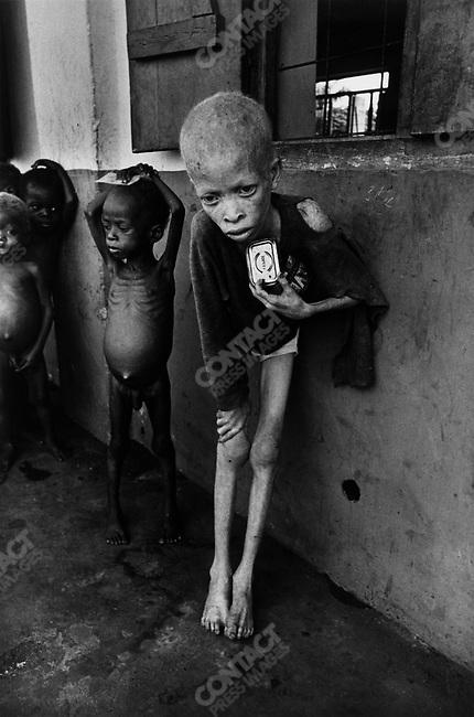 Albino boy clutching an empty corned beef tin, Biafra, Nigeria, 1969