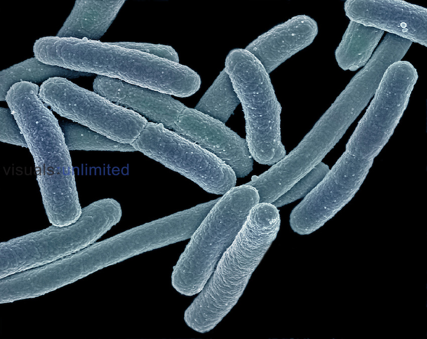 Escherichia coli Bacteria can cause food poisoning when found in above average numbers. SEM X40,000