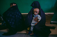LASHKAR GAH, AFGHANISTAN - SEPTEMBER 23: 4 year old Noor Ahmad, is held by his mother Qamar Gula, 30, on a plastic mattress (unseen) in an administrative office, due to overcrowding in the Inpatient Therapeutic Feeding Centre (ITFC) wards, as malnourished Afghan children receive medical care at the Bost Hospital, a Medecins Sans Frontiers (MSF) assisted hospital, on September 23, 2013 in Lashkar Gah, in Helmand Province, Afghanistan. Qamar Gula, having lost 3 children previously, from Garamser district, travelled with her son Noor Ahmad, as he was not eating and his stomach was swelling. Qamar Gul waited a month, taking her baby in to local clinics, before being told to take Noor Ahmad to the Bust hospital in Lashkar Gah. Qamar Gula, has already lost 3 sons previously, 2 newborns to hepatitis and the other drowned in their nearby Helmand river.